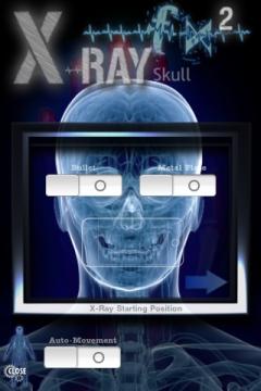 x-ray fx röntgen app